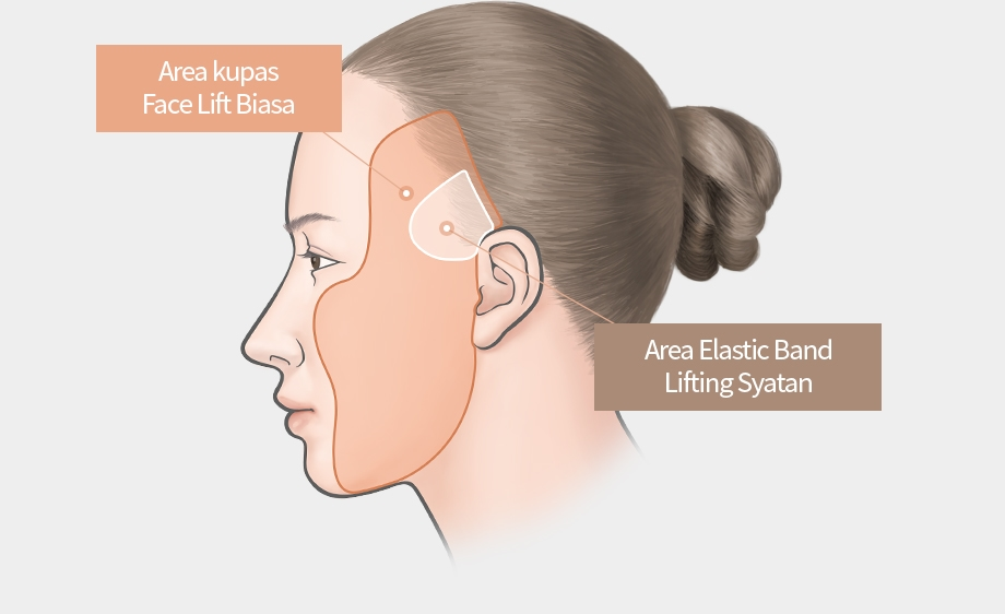 Elastic Band Lifting (Sayatan) - Area kupas Face Lift Biasa, Area Elastic Band Lifting Syatan
