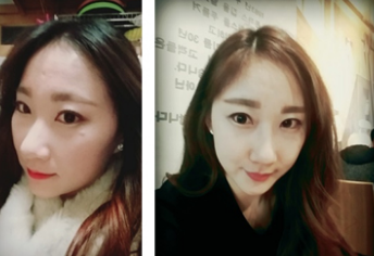 Ms.K's Plastic Surgery Real Review