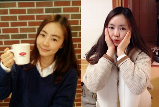 Twinkle Princess's Plastic Surgery Real Review