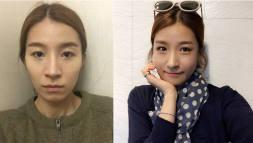 Youngjoo's Plastic Surgery Real Review