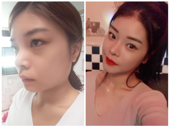 Pyupyuri's Plastic Surgery Real Review